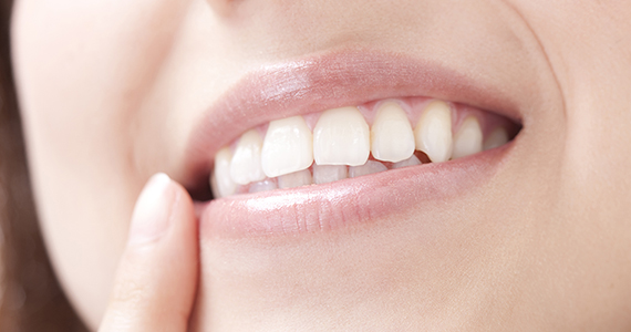 歯を白くする治療