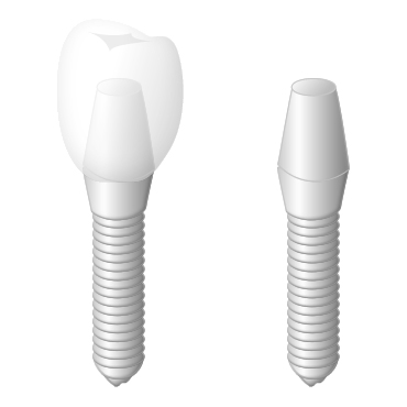 歯がなくなった箇所に人工の歯を埋める治療